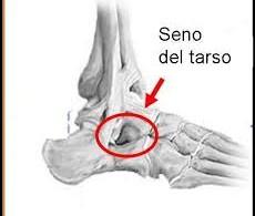 senoTarso3