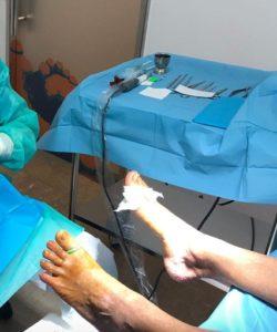 tras estudio y análisis planteamos solución definitiva a su problema. Ayer, bajo anestesia local y cirugía mínimamente invasiva, solventamos este problema en nuestra clínica Miguel Martinez Cano