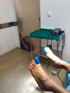 En clínica podológica Miguel Martinez Cano de Torrevieja tras estudio y análisis planteamos solución definitiva a su problema. Ayer, bajo anestesia local y cirugía mínimamente invasiva, solventamos este problema- podologo Miguel Martinez Cano- torrevieja