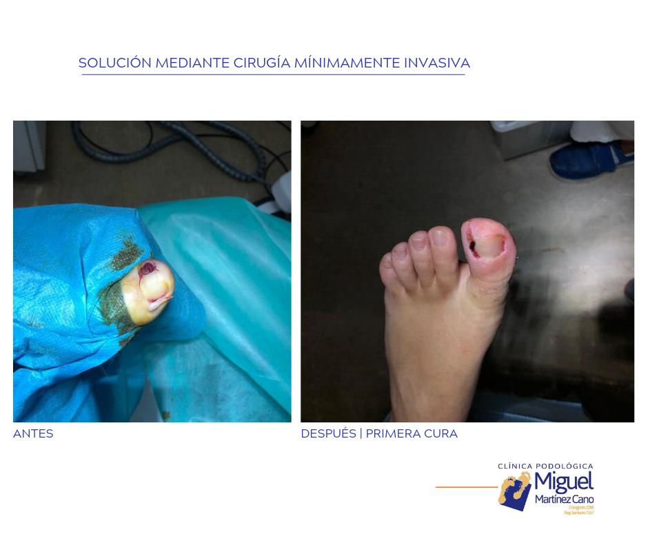 Antes y después de intervención de cirugía en dedo de pie
