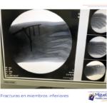 Miguel Martinez Cano Podologo Torrevieja tratamiento ortopodologico (plantillas) que le realizaremos y adaptaremos en unas semanas para favorecer su deambulacion y estabilidad