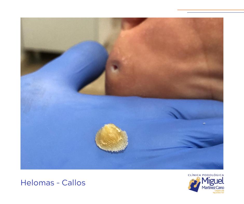 Helomas (callos) Dificultan nuestra pisada provocándonos dolor e impotencia funcional (nos hacen caminar mal). No solo hay que tratar el heloma sino conocer y buscar la causa de la aparición del mismo para poder tratarla y hacer que se resuelva el problema.