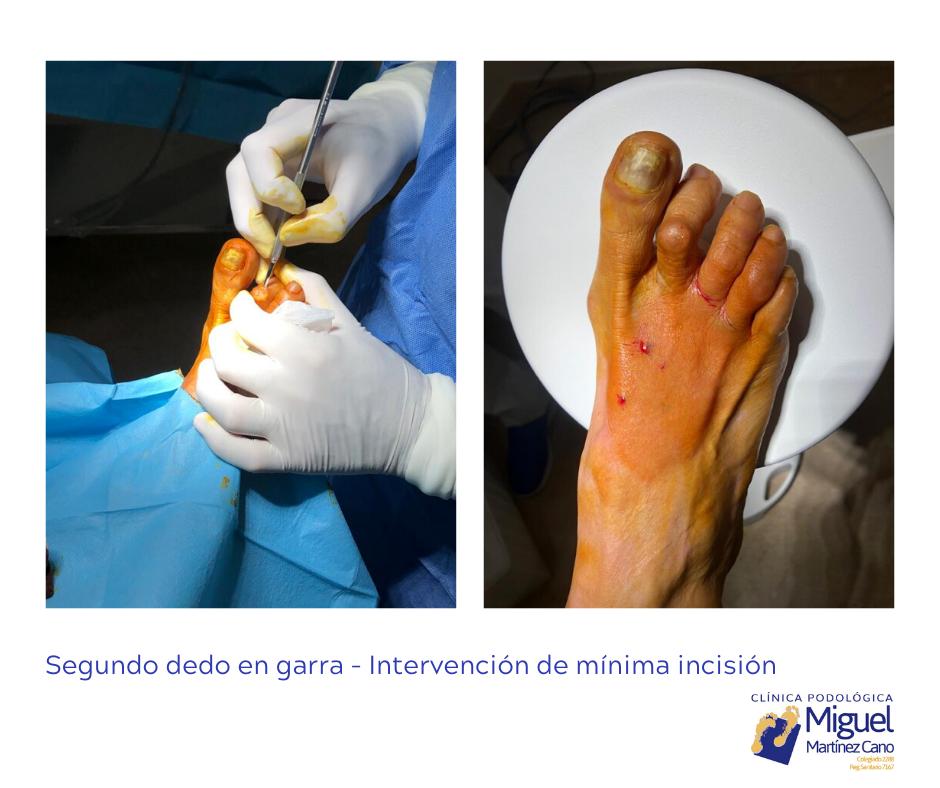 Soluión a dedo en garra por Miguel Martinez Cano Podologo Torrevieja