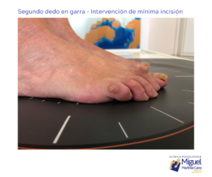 segundo dedo en garra SOLUCIÓN DEFINITIVA EN TORREVIEJA CLINICA MIGUEL MARTINEZ CANO (1)