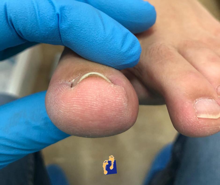 Solución de problemas en pie mediante cirugía mínimamente invasiva por podologo Miguel Martinez Cano para la vega baja del segura